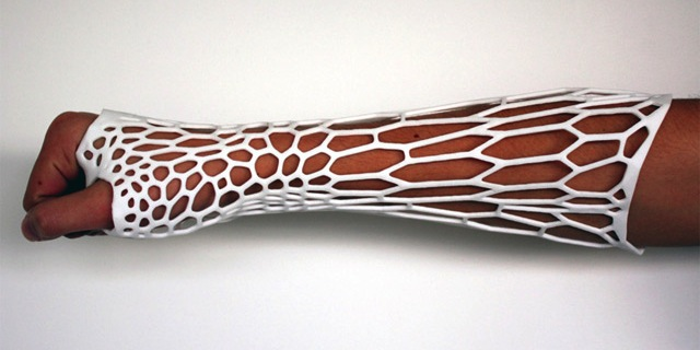 Jake Evill Cortex 3D printed Exoskeletal Cast recyclable breathable light washable